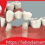 Phục hình cầu răng sứ