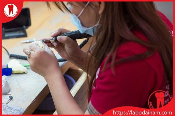 Kĩ thuật viên chế tạo răng sứ tại Labo Đại Nam