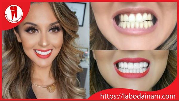 Phục hình răng sứ bằng công nghệ CAD/CAM