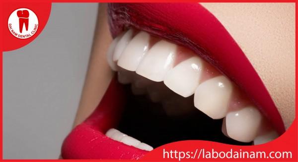 Tính thẩm mỹ cao của phục hình răng sứ Cercon