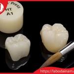 Răng sứ Emax