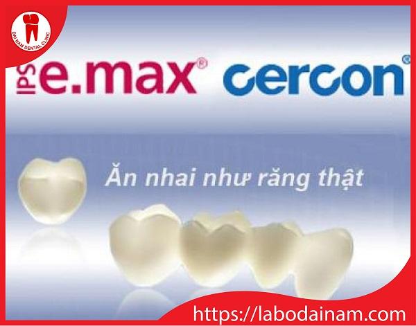 Răng sứ Emax - ăn nhai như răng thật