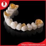 Răng sứ không kim loại và quý kim khác sứ thường như thế nào?
