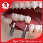 Phục hình răng trên Implant – Mang thẩm mỹ cao