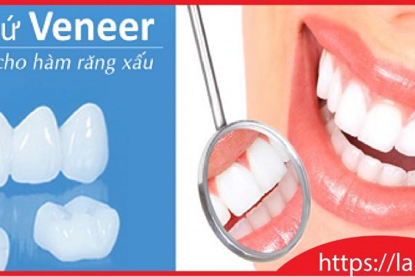Veneer- Giải pháp số 1 cho hàm răng xấu