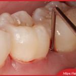 Làm răng sứ có an toàn hay không nếu thực hiện đúng kĩ thuật
