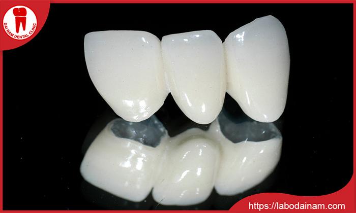Hôi miệng có thể không phải bọc răng sứ