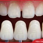 Làm răng sứ có thật sự an toàn?