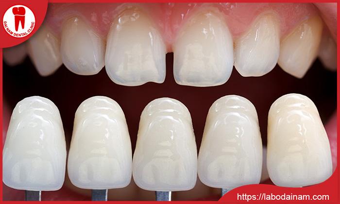 Làm răng sứ
