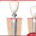 Mất răng nên cấy ghép Implant hay hàm giả, cầu răng
