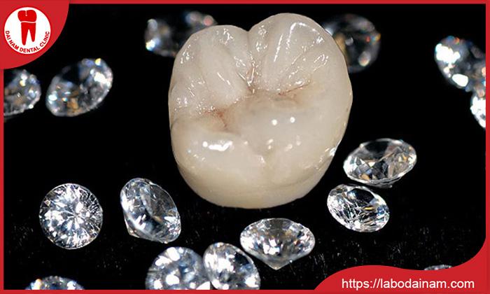 Răng sứ Diamond