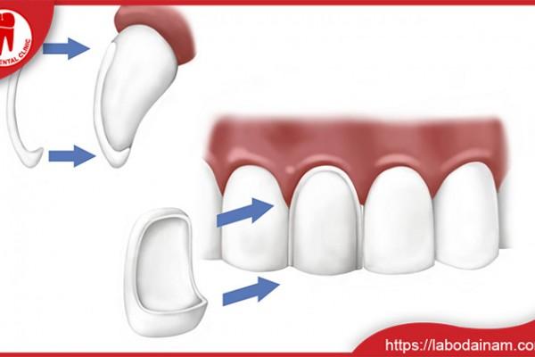 Răng sứ Veneer X
