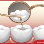 Trường hợp nào nên lấy tủy khi làm răng sứ