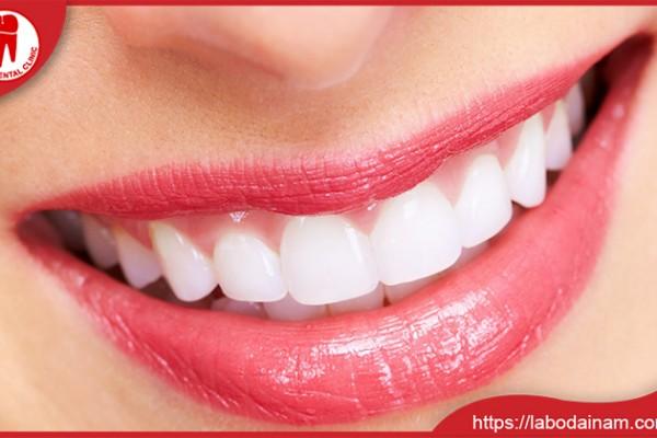 Một hàm răng hoàn hảo cùng nụ cười tỏa sáng
