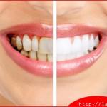 Bị mất 1 răng thì phải bọc bao nhiêu răng sứ?