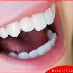 Tham khảo thông tin: Bọc răng sứ titan có tốt không?