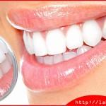 Bọc răng sứ có cần phải lấy tủy hay không vậy?