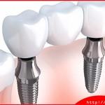 Có nên cấy ghép implant khi bị sâu răng hay không?