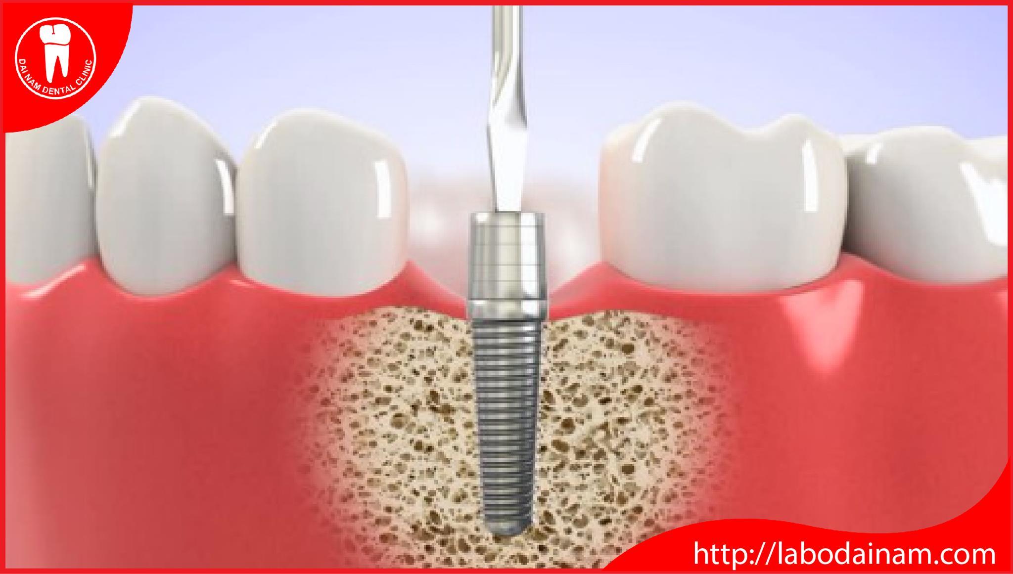 cấy ghép implant uy tín ở tphcm